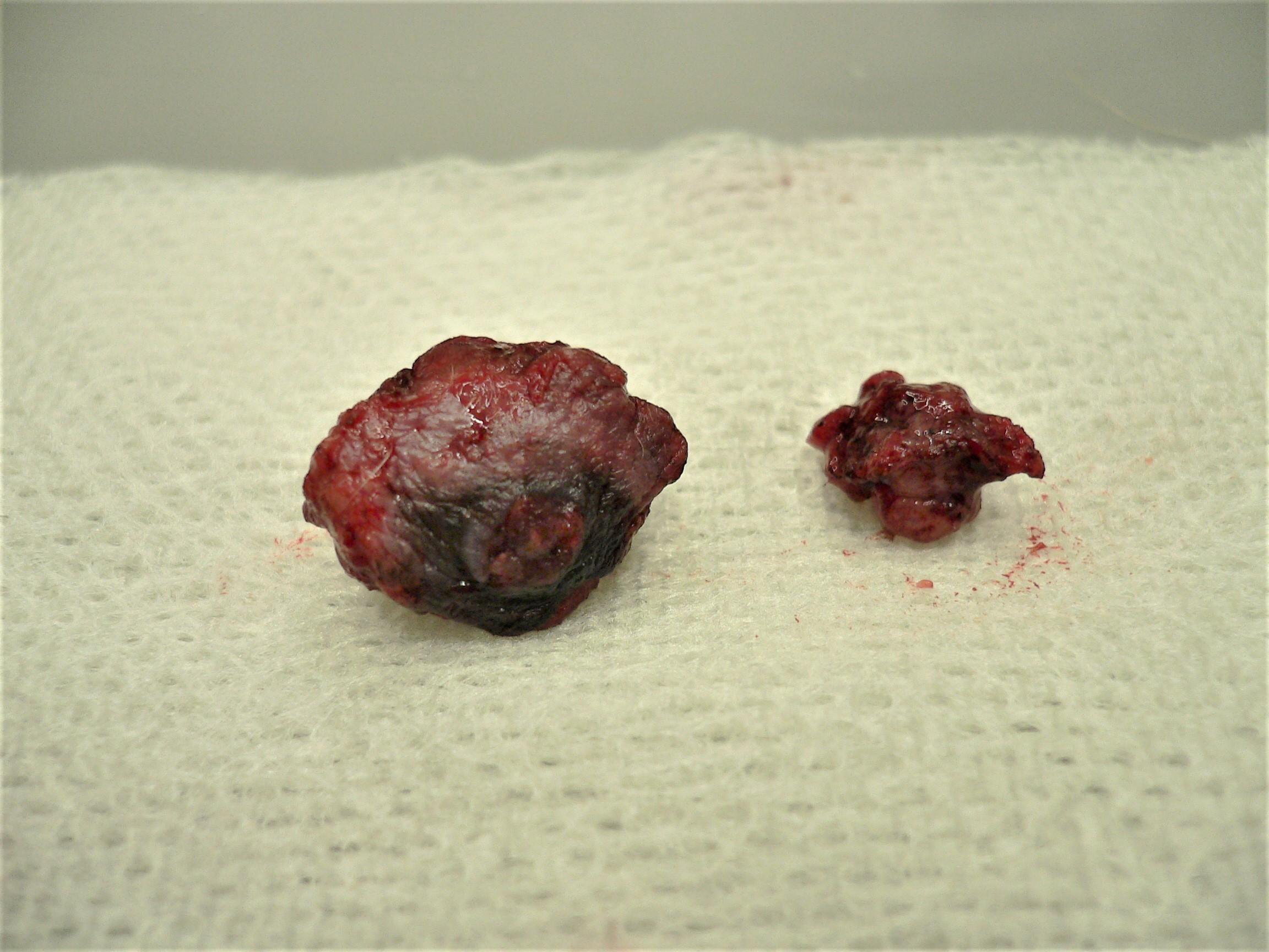 こう もん しゅう い 腫瘍
